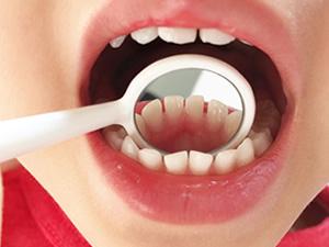 子どもの歯
