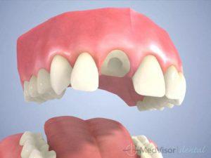 かぶせ物(さし歯)の治療