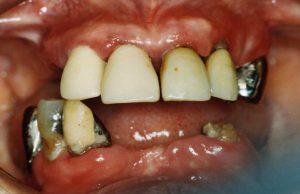 歯周病治療の実際